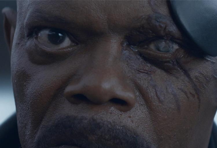 Ele usa um tapa-olho por causa de uma granada